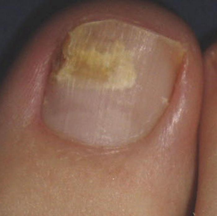 Лечение грибка между пальцами ног народными средствами