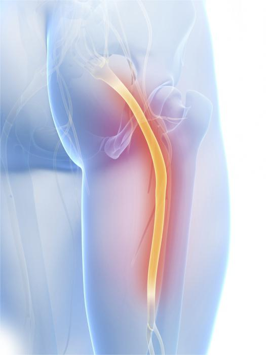 inflammation of the sciatic nerve