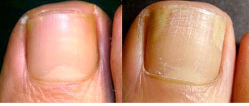 Виды грибка между пальцами ног