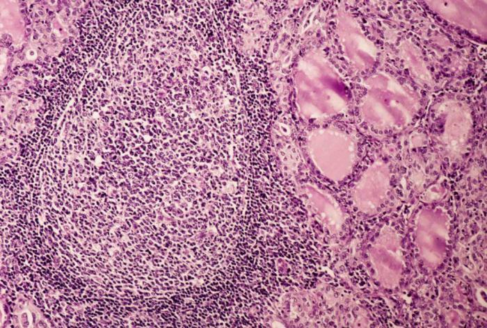Беременность боль справа ниже поясницы