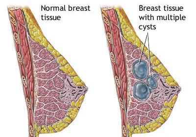 Диффузно фиброзная мастопатия молочной железы лечение 6