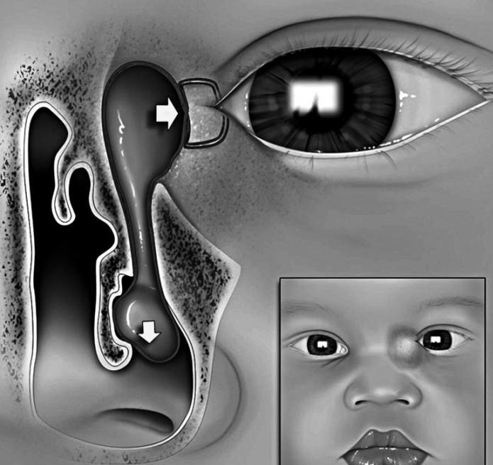 дакриоцистит новорожденных симптомы