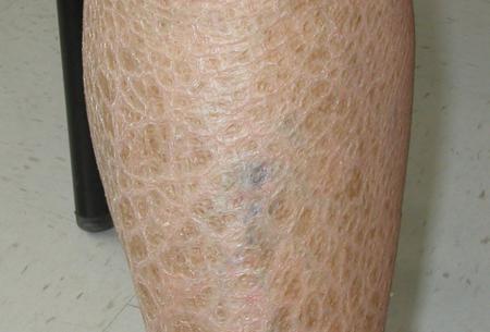 Ихтиоз кожи: что это за болезнь и как вылечить?