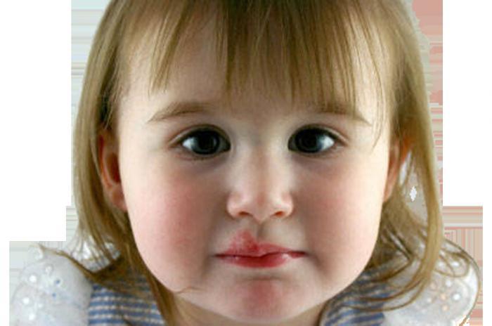 Герпес у ребенка на губе лечение в домашних условиях