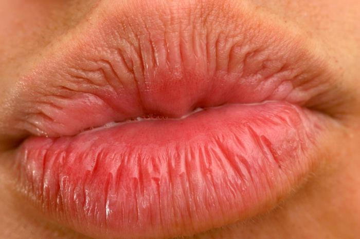против герпеса на губах