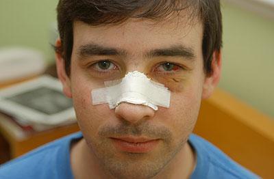 Что делать если сломали нос