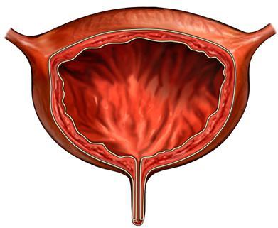гиперактивный мочевой пузырь лечение