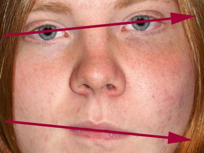 Дисплазия Фиброзная