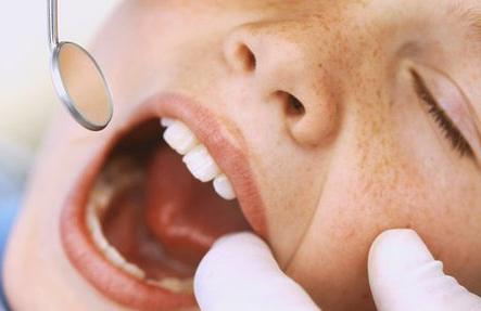 причина запаха изо рта не больные зубы