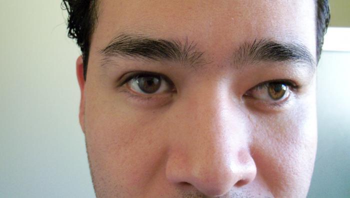 Зрение минус 3 какие линзы