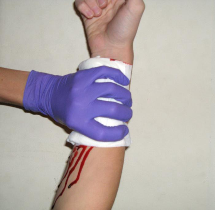 признаки артериального кровотечения