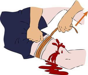 венозное и артериальное кровотечение