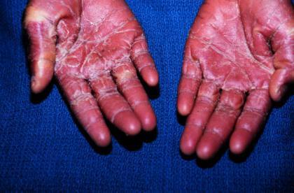 инфекционно токсический шок при пневмонии
