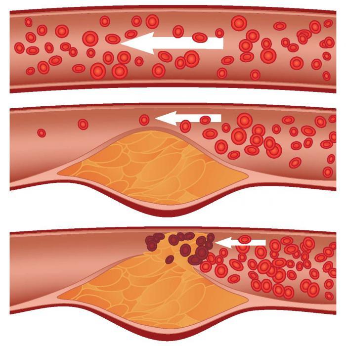 лечение от холестерина в крови