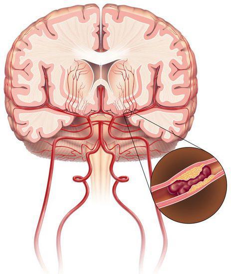ишемическая болезно головного мозга симптомы
