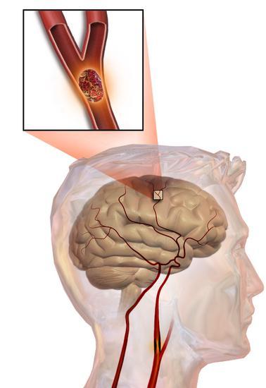 хроническая ишемическая болезнь головного мозга
