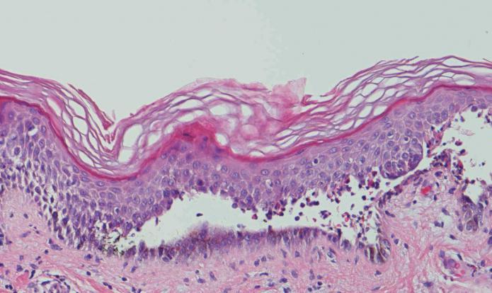 Болезнь пузырчатка (симптомы, причины, лечение)