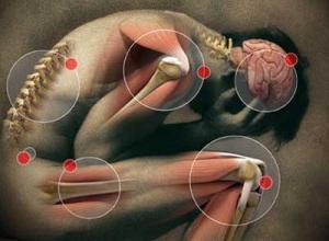 Миофасциальный синдром шейного отдела лечение