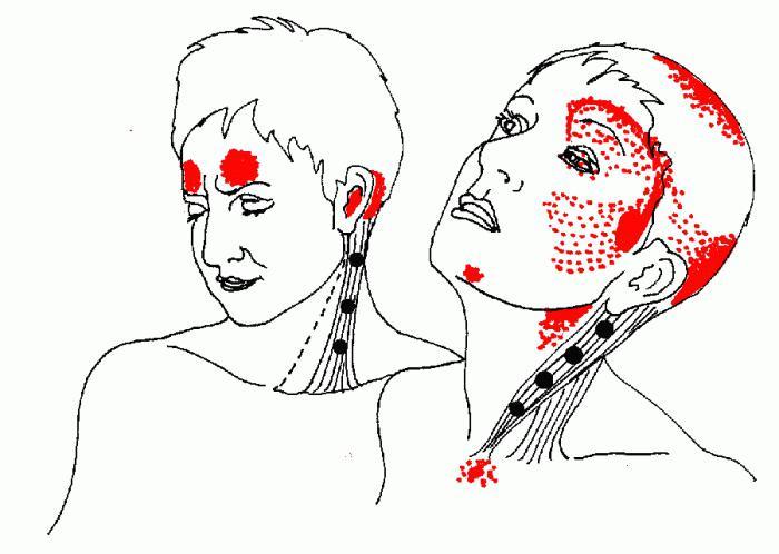 боль в плече и челюсти уход термобельем