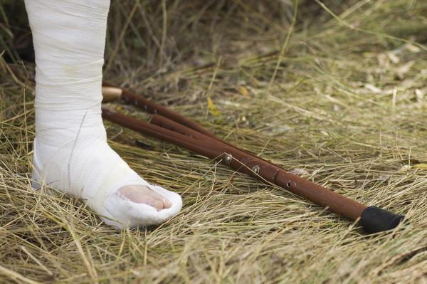 ноги после перелома