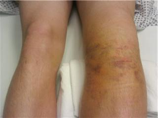 Как лечить перелом ступни ног thumbnail