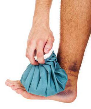 Растяжение связок голеностопного сустава: симптомы и лечение.
