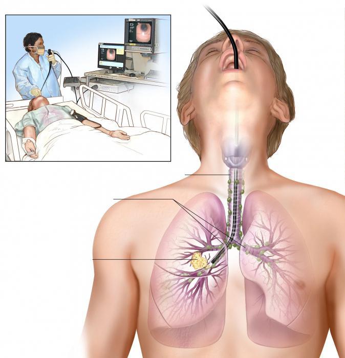 Broncoscopia pulmonar efectos secundarios