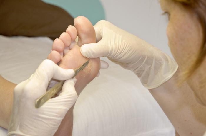 Натоптыши под пальцами ног