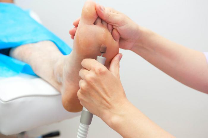 Как вылечить натоптыши на пальцах ног