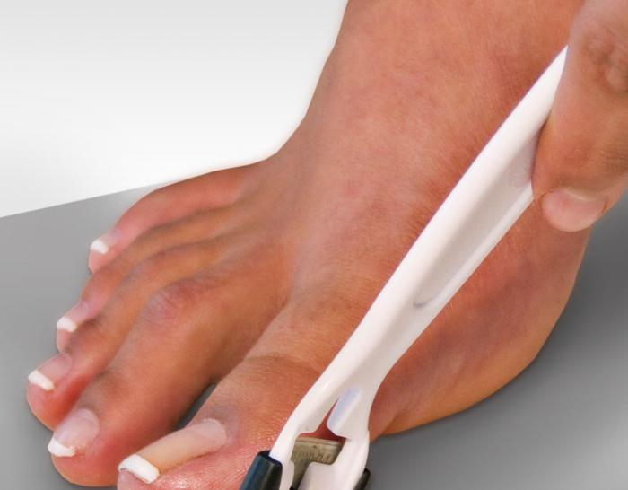 Натоптыши на пальцах ног