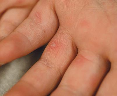 skin diseases bubbles on hands