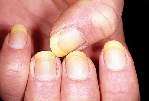skin diseases on fingers