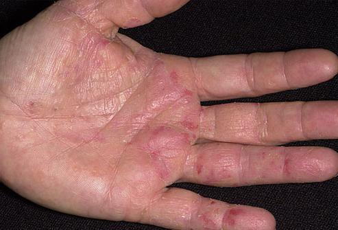 skin diseases on hands