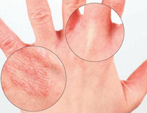 сухая кожа рук