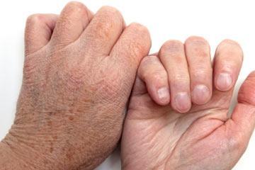 Почему сухая кожа на руках