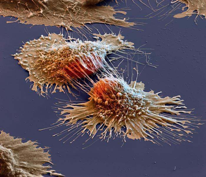 раковые клетки, фото