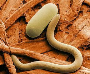 какие паразиты бывают у человека фото