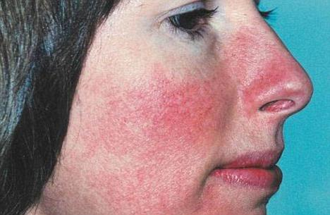 красные пятна на лице шелушатся