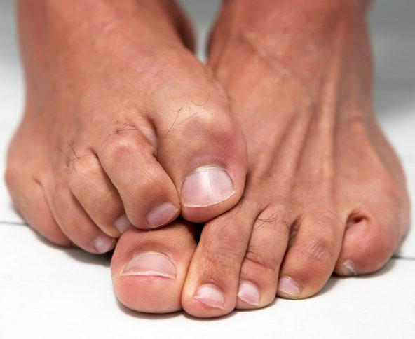 Какими мазями можно лечить грибок ногтей