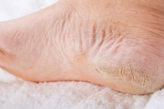 Почему на одной ноге шелушится кожа на