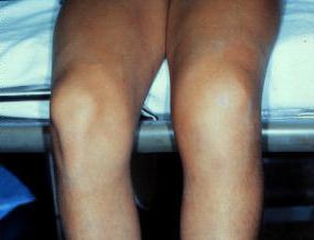 ушиб колена лечение