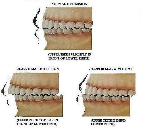 прогнатия нижней челюсти