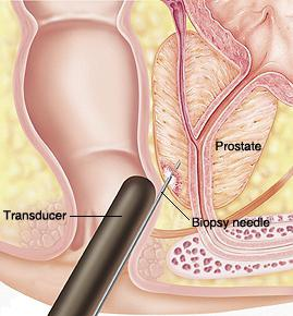 ultrasound of the prostate gland preparation