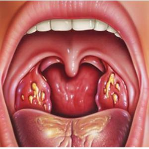 How to treat acute tonsillitis