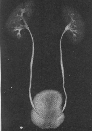 внутривенная урография подготовка пациента