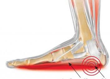 reviews shock wave therapy heel spurs