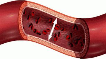 гипертоническая болезнь 2 степени симптомы