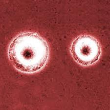 микоплазма при беременности симптомы и лечение
