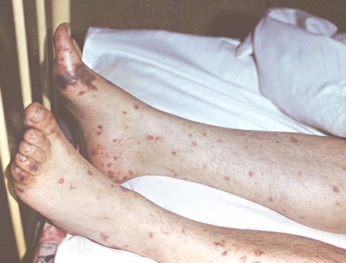прививка от брюшного тифа