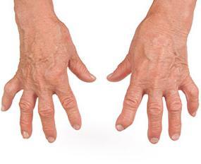 Метотрексат или метипред при ревматоидном артрите